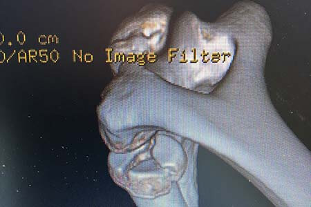3d ct of radial head fracture