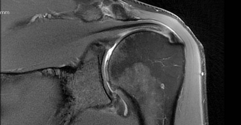 MRI humeral head chondral loss
