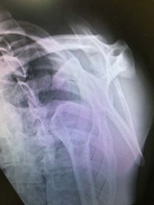 anterior dislocation of shoulder lateral view
