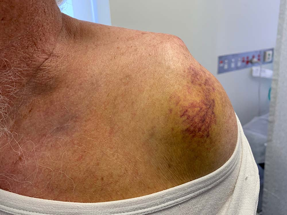 bruised shoulder after dislocation with rotator cuff tear clinical photo front view