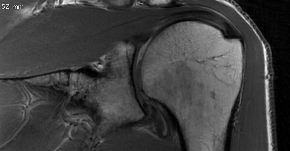 humeral chondral loss MRI