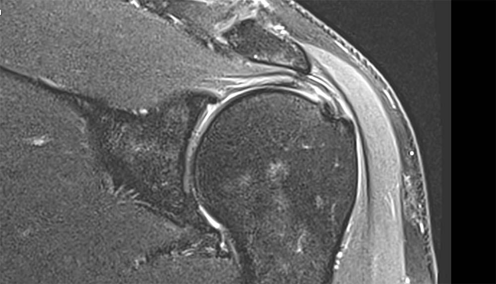partial thickness supraspinatus tear