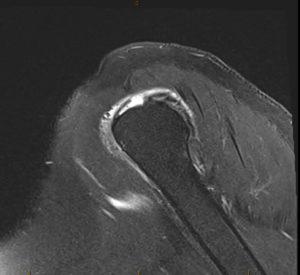 rotator cuff tear on MRI